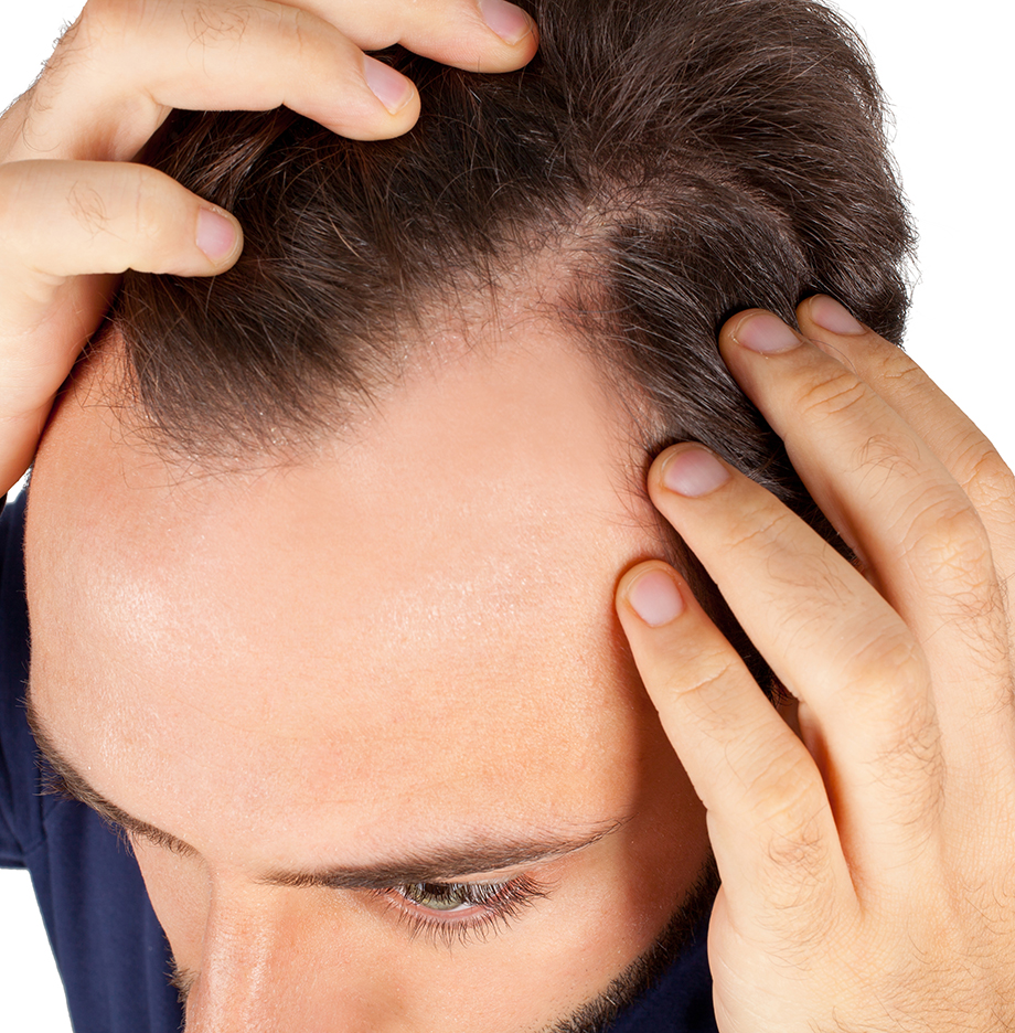 Laser Therapy as a Hair Loss Treatment