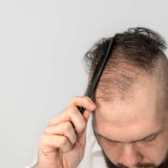 What Are Reasons For General Hair Loss & How To Prevent It?