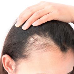 What Are Some Medical & Non-Medical Reasons For Hair Loss In Women